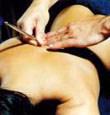 Die Segmenttherapie