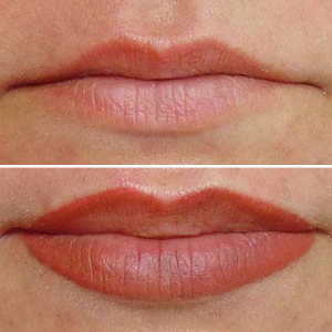 permanent make up lippen lippenkontur vorher nachher