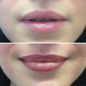 permanent make up lippen lippenkontur vorher nachher